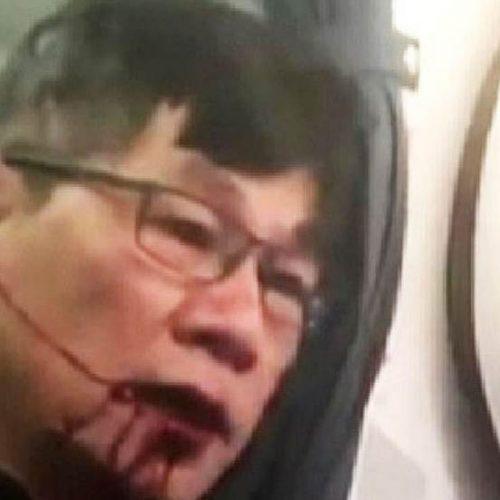 EUA: Homem retirado à força de avião terá de fazer cirurgia reconstrutiva