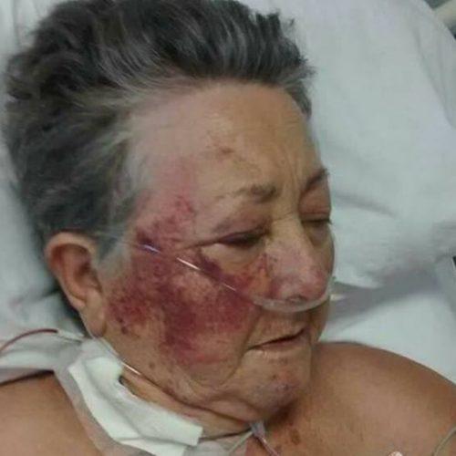 Idosa é agredida por enfermeiro em UTI de hospital