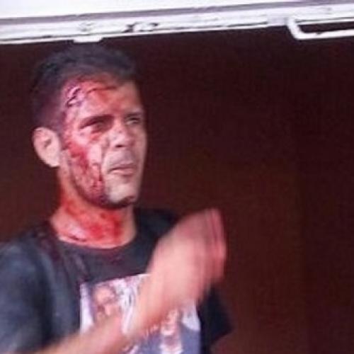 Eunápolis: Homem é espancado após suspeita de abuso contra criança de 9 anos