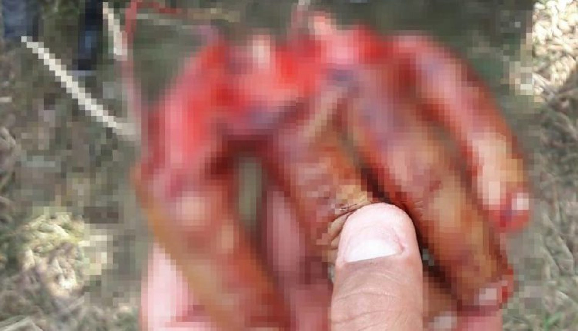CRUELDADE: Após discussão, homem tem mão decepada em Conceição do Jacuípe