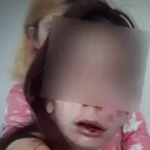 Jovem deficiente tem cabeça amassada e mãos queimadas por adolescentes: assista