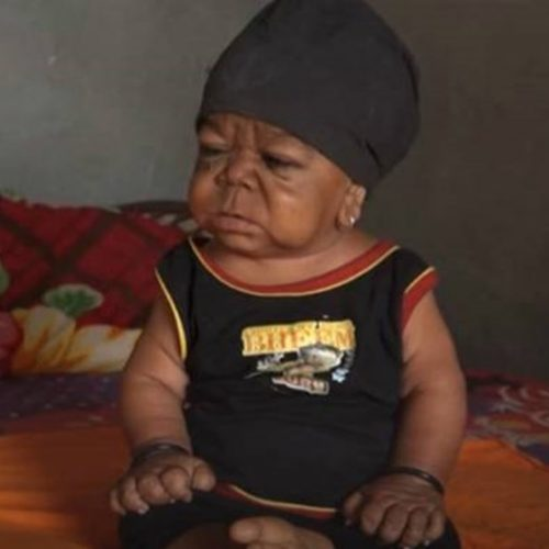 Homem de 23 anos vive preso em corpo de bebê