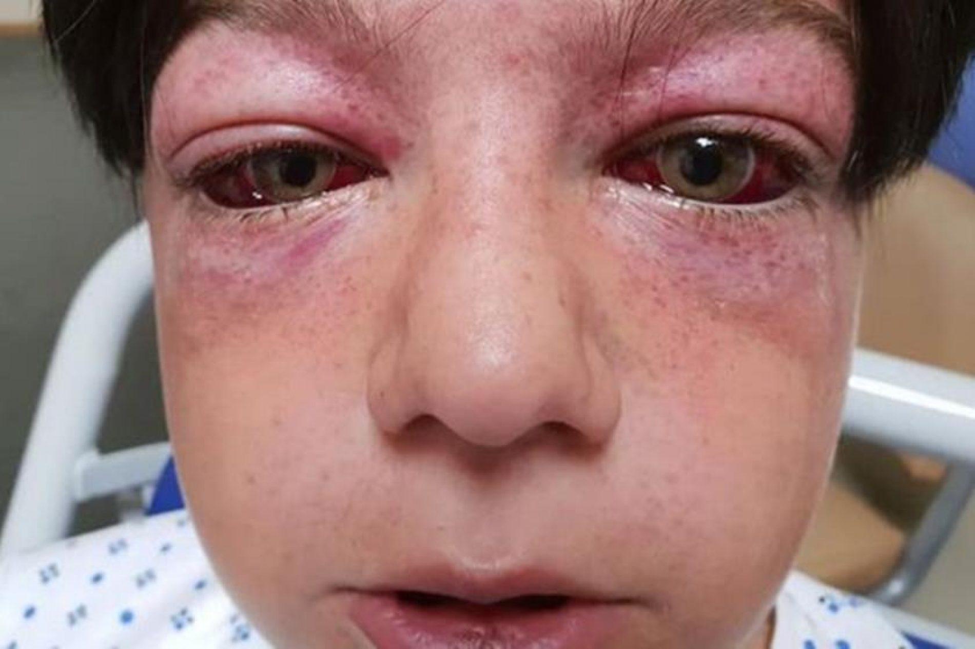 Novo desafio da internet deixa criança de 11 anos gravemente ferida